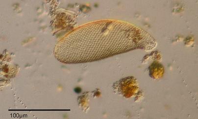 """Cyphoderia ampulla - Testate amoeba - 160x"", de Picturepest, Flickr"